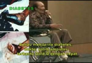 Obat Luka Gangren
